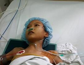 """PGS-TS Nguyễn Hữu Ước: """"Chúng tôi đang nỗ lực hết sức để cứu bé Thanh Mai"""""""