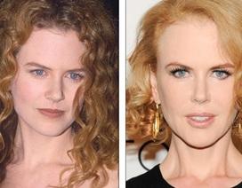 Nicole Kidman: 20 năm, gương mặt không thay đổi!