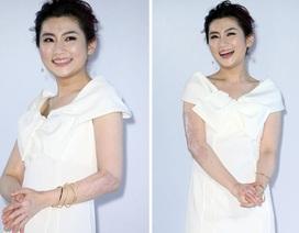 Nữ ca sĩ bị bỏng tự tin mặc váy không ngại sẹo