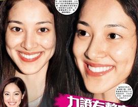Bằng chứng dao kéo thẩm mỹ của đương kim hoa hậu Hồng Kông