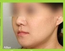 Tổng quát về móm (khớp cắn ngược, vẩu hàm) và cách điều trị