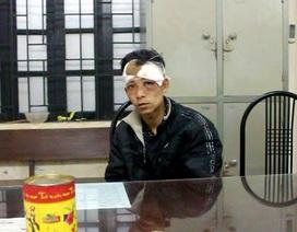 Hà Nội: Đối tượng trộm chó bị người dân đánh trọng thương