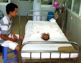 Tai nạn hy hữu, 3 người trong một gia đình bỏng nặng