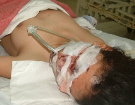 Nổ bình khí bơm bóng bay, 4 người bị thương nặng