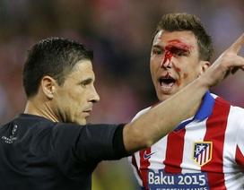 """""""Ăn đòn"""" của cầu thủ Real Madrid, Mandzukic đổ máu"""