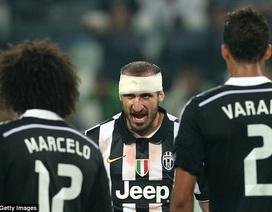 Bán kết Champions League: Juventus không phải tay mơ!