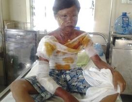 Nổ bình gas mini, một học sinh bỏng nặng