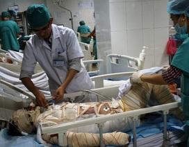 Lao vào cứu con, mẹ nguy kịch tính mạng vì bỏng xăng  80% cơ thể