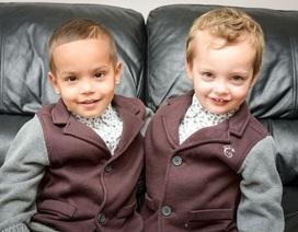 Gặp gỡ anh em sinh đôi khác màu da:Triệu người mới có một!