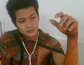 Một công nhân bị lưỡi cưa cắt lìa bàn tay