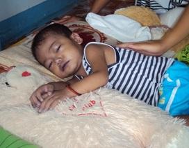 Mắc bệnh tim, bé 2 tuổi thoi thóp chờ chết