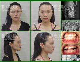 Phẫu thuật hàm vẩu (móm) không cần niềng răng