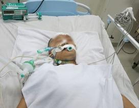 Sinh viên 21 tuổi nhập viện vì tai biến mạch máu não