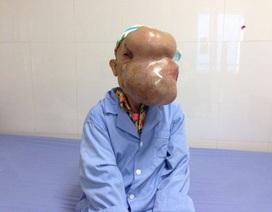 """Hy hữu khối u """"khủng"""" che kín toàn bộ mũi, mặt và gây vỡ mắt"""