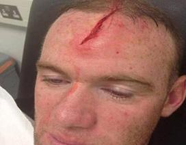 Sốc với vết thương kinh hoàng trên trán Rooney