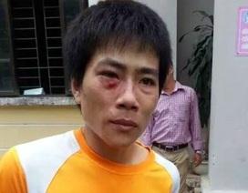 Hà Nội: Cao thủ trộm gương xế xịn hung hăng chống lại công an