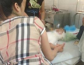 Mẹ bé bị đốt bỏng ở lớp không nghĩ đến việc truy cứu trách nhiệm