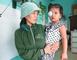 Xót lòng cháu bé 3 tuổi đã phải phẫu thuật cắt bỏ mắt