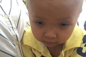 Căn bệnh khiến đôi mắt của bé Linh lờ đờ và chỉ nhìn được những vật ở khoảng cách rất gần.