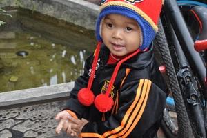 Sau gần 1 tháng gặp lại, cậu bé Lanh đã hoàn thành ca mổ lắp mắt giả và đã xạ trị được 2 lần ở bệnh viện Nhi HN.