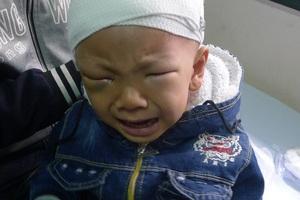 2 tuổi cậu bé Phúc bị ung thư võng mạc nên em phải mổ khoét mắt.