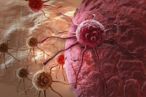 Tìm ra cách ngăn tế bào ung thư di căn