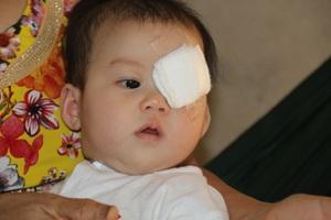 Hơn 3 tháng tuổi, Quỳnh Chi đã phải giành giật sự sống trước căn bệnh ung thư võng mạc