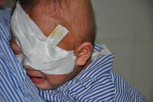 Vừa trải qua ca phẫu thuật khoét bỏ mắt trái nên cô bé Tuyết khóc dữ dội.