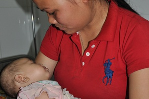 Em gái của Hùng mới 3 tháng tuổi cũng phải đến viện để kiểm tra mắt.