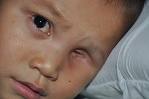 Hiện tại em đã được khoét bỏ 1 mắt và đang tiếp tục điều trị.