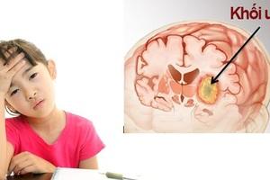 Trẻ em cũng là đối tượng dễ mắc ung thư não