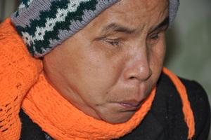 Cô Bòng (em gái chồng cô Minh) đã bị mù hơn 40 năm qua.
