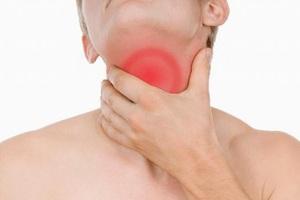 Cổ sưng, nổi hạch là triệu chứng điển hình của ung thư vòm họng di căn hạch