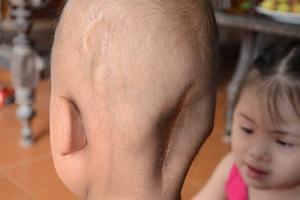 Để giữ được tính mạng, Thiên Ân đã phải trải qua 6 lần phẫu thuật, 16 lần hóa, xạ trị.