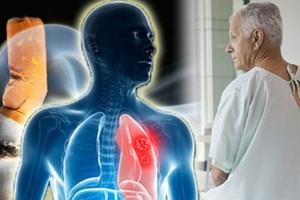 Ung thư phổi là loại ung thư phổ biến thứ 2 ở nam giới.