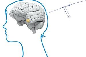 Dao laser đốt tế bào ung thư não lần đầu tiên được sử dụng ở Anh