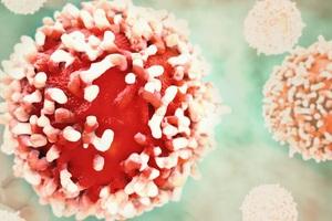 Ăn kiêng như thế nào để chống ung thư?