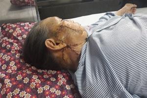 Quảng Bình: Phẫu thuật ghép da mặt thành công cho bệnh nhân ung thư da