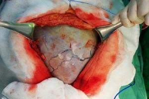 Khối u nặng 20kg đã được bác sĩ phẫu thuật bóc thành công khỏi cơ thể người bệnh