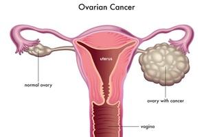 Loại ung thư gặp nhiều thứ 2 ở nữ giới nhưng ít dấu hiệu điển hình