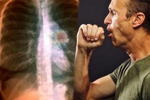 Nhận diện bệnh ung thư phổi qua cơn ho