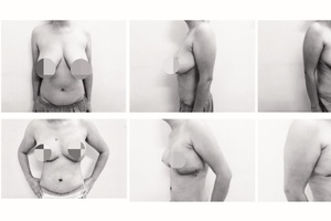 """Bệnh nhân ung thư vú hết cảnh """"bên còn, bên mất"""" sau điều trị khối u"""