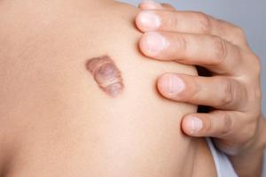 """Tự bảo vệ mình khỏi ung thư da với """"cẩm nang vàng"""" từ bác sĩ - 2"""