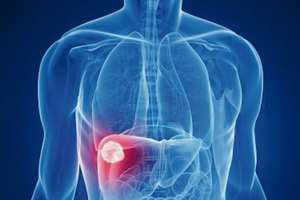 Ung thư gan được điều trị bằng những phương pháp nào?