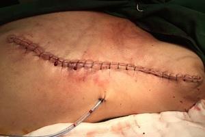 Bầu vú vỡ toạc như miệng núi lửa vì đắp thuốc nam trị ung thư - 2