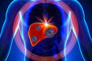 Ung thư gan - Bệnh có tỷ lệ mắc mới nhiều nhất hiện nay tại Việt Nam