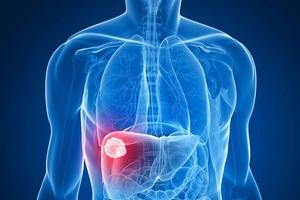 Căn bệnh ung thư nào đang có tỷ lệ mắc mới nhiều nhất tại Việt Nam? - 1