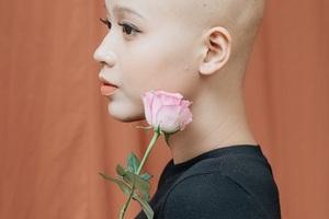 Nữ sinh 19 tuổi đã mắc ung thư vú và lời cảnh tỉnh không thể bỏ qua