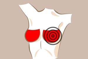 Có 6 dấu hiệu này ở ngực, nguy cơ bạn mắc các bệnh nguy hiểm rất cao - 2