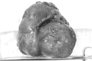 Nữ bệnh nhân mang khối u thận gần 1kg